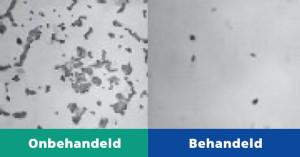 Anti-bacteriologische behandeling
